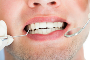 gum disease prevention